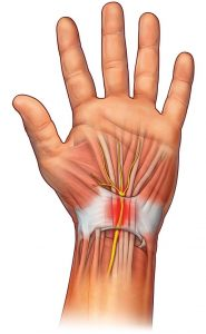 Artróza drobných kloubů ruky